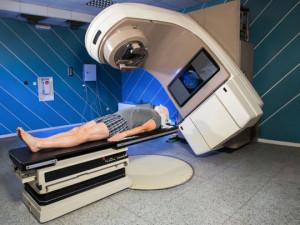 Cancer-mieux-comprendre-les-effets-secondaires-de-la-radiotherapie_exact540x405_l